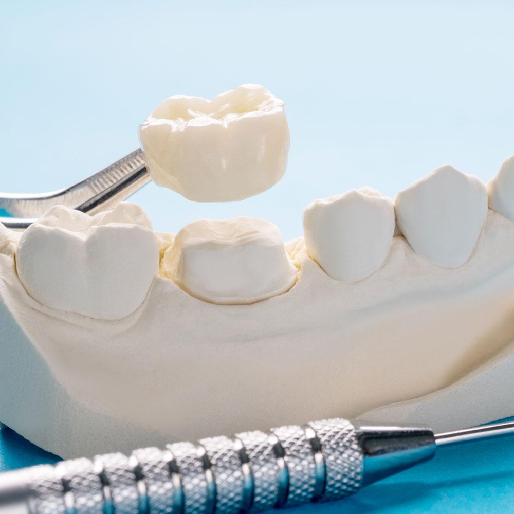 Broken dental crown