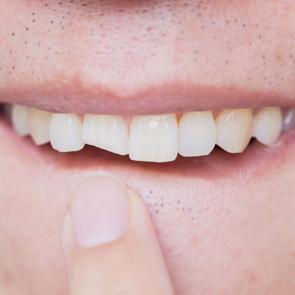 Broken tooth emergency treatment