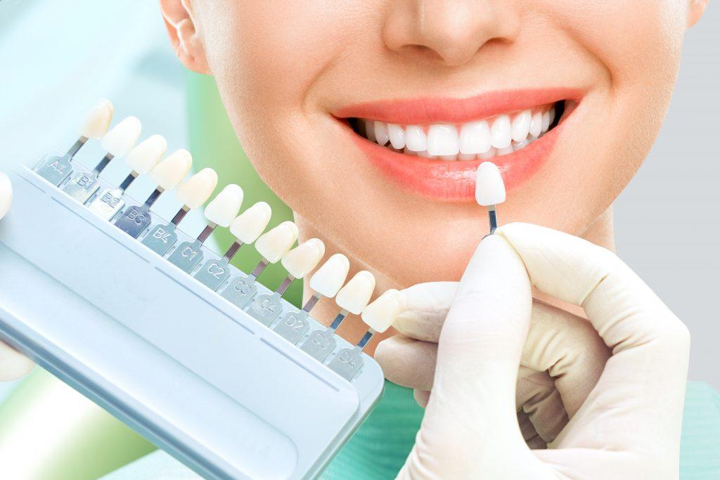 Loose or broken dental veneer treatment in London
