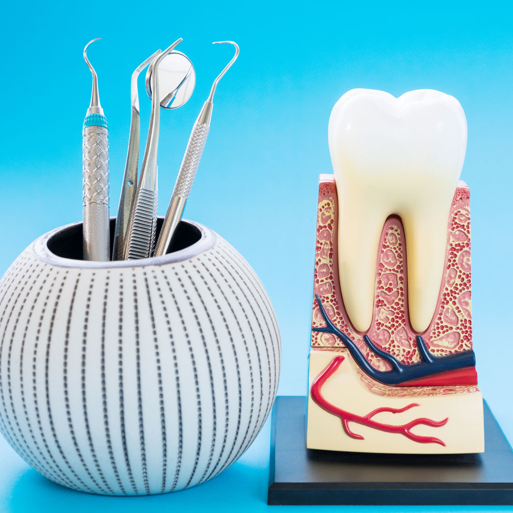 Emergency root canal treatment, London