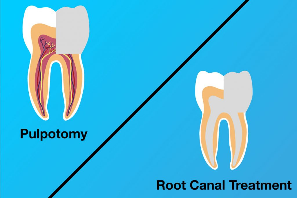 Pulpotomy-vs-Root-canal-treatment
