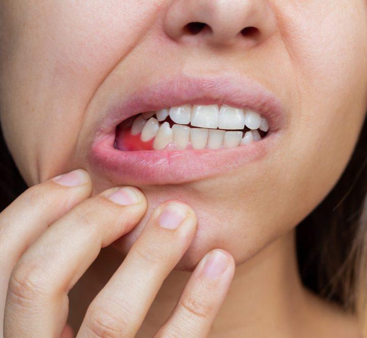 Symptoms of periodontitis