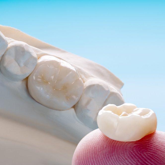 Types of prosthodontic dental emergency